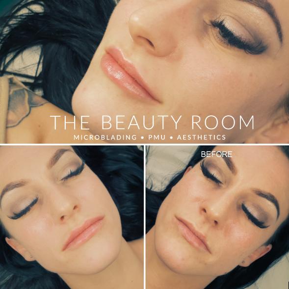 1ml Lip Enhancement & correction