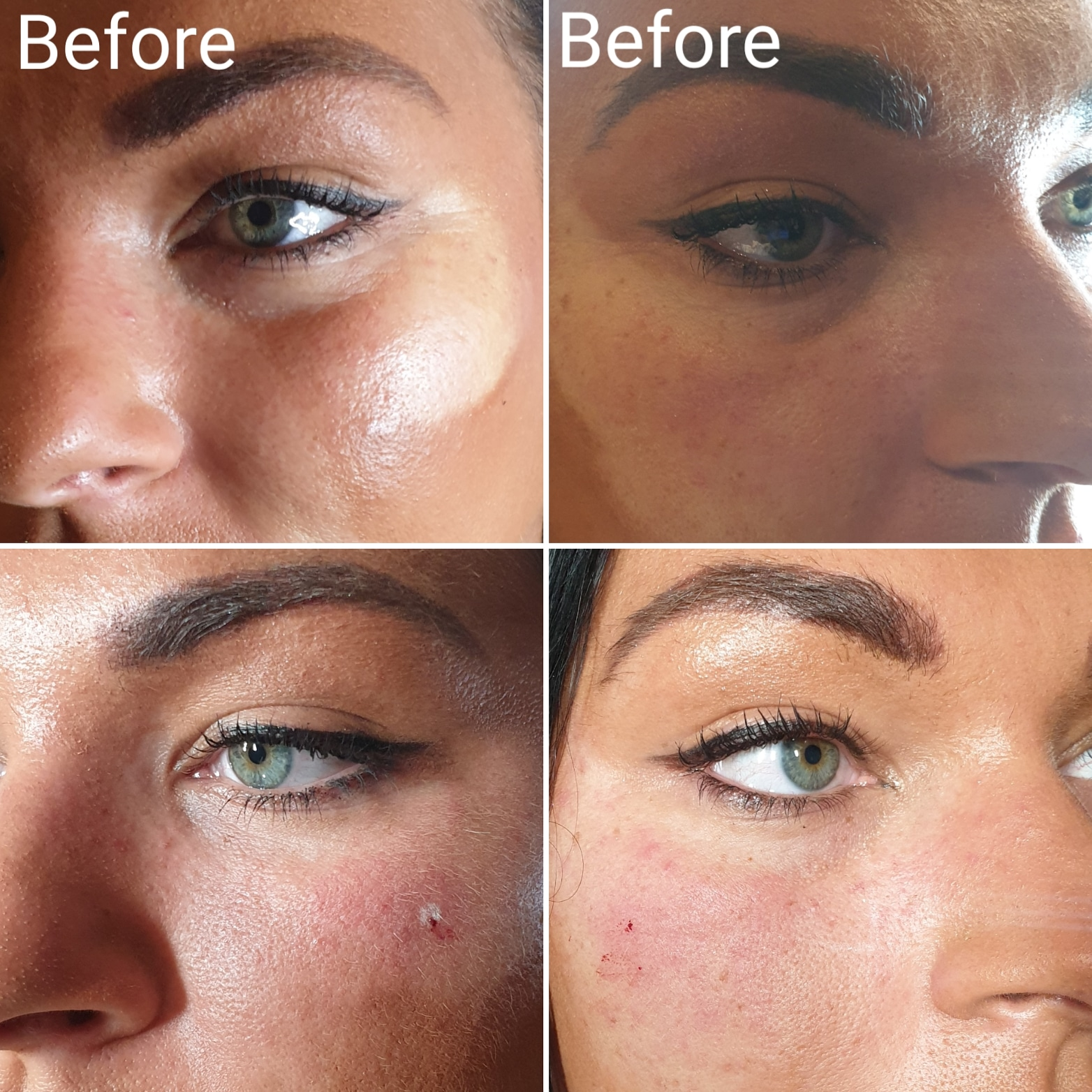 Dermal Filler | The Beauty Room | Microblading | Permanent
