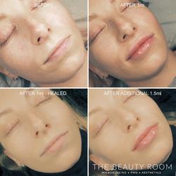 2.5ml Lip Enhancement