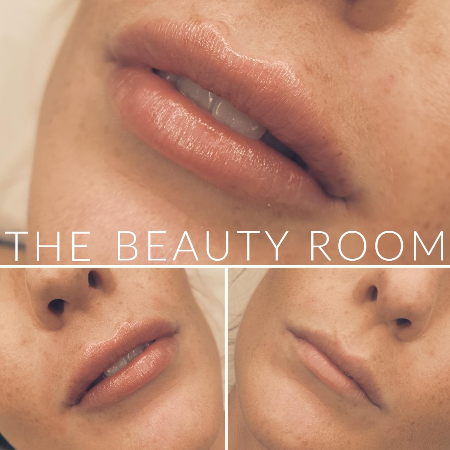 1ml Lip Enhancement