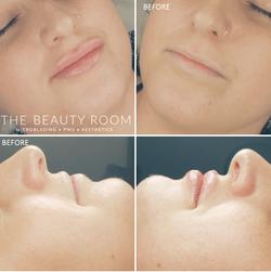 1/2ml Juvederm Lip Enhancement