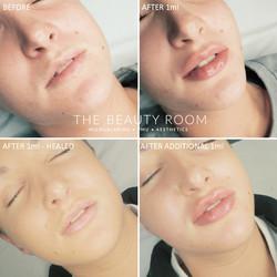 1.9ml Lip Enhancement