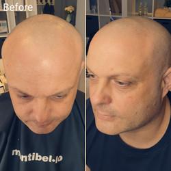 Scalp Micropigmentation (after first tre