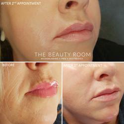 3ml Filler-Lips, Nasolabials & Chin