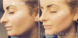 Cheek, Jaw & Chin Enhancement