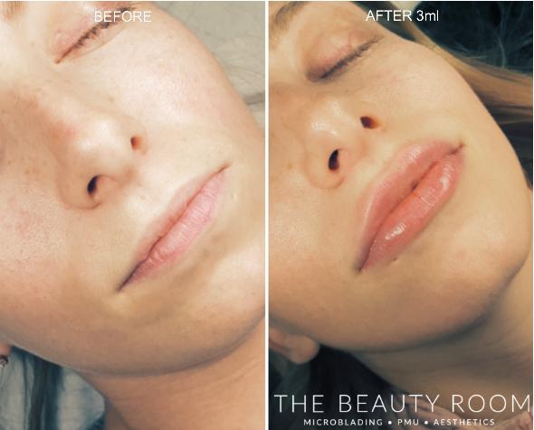 3ml Revolax Lip Enhancement