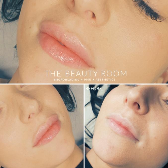 1ml Revolax Lip Enhancement