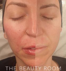 Facial contouring (Cheeks, Jaw, Lips)
