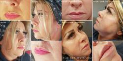 Revolax Facial Contour