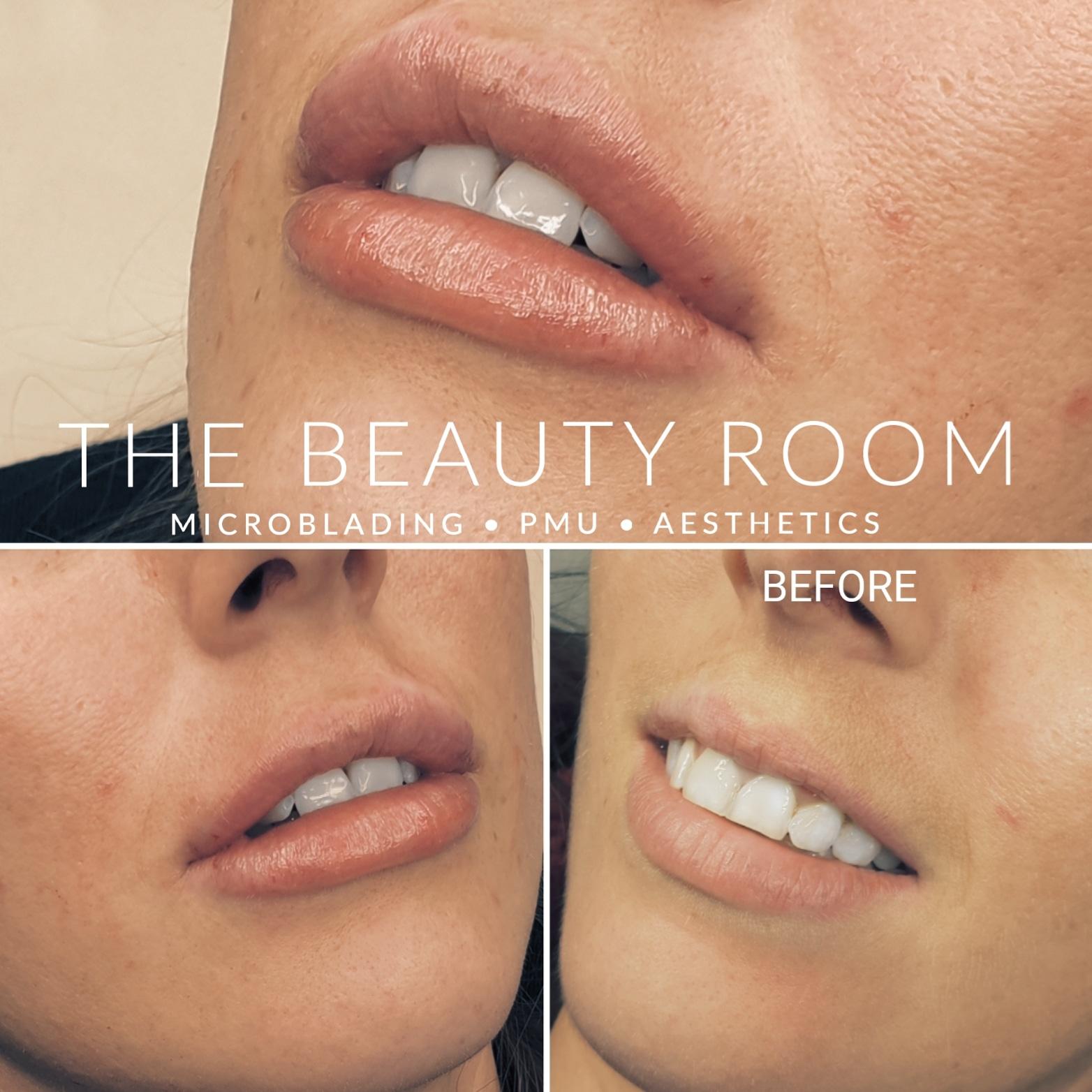 3ml Lip Enhancement
