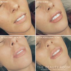 1.6ml Lip Enhancement