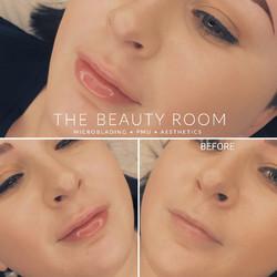 1.1ml Lip Enhancement