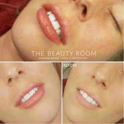 0.9m Revolax Lip Enhancement