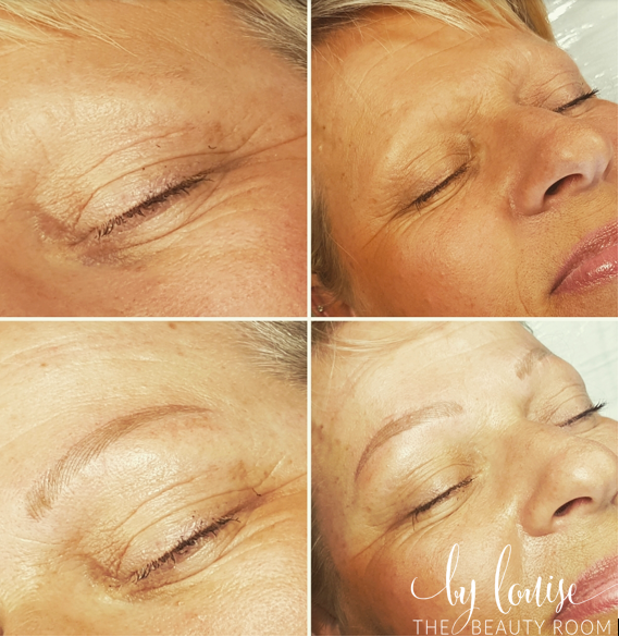 Microblading - Brow Reconstruction