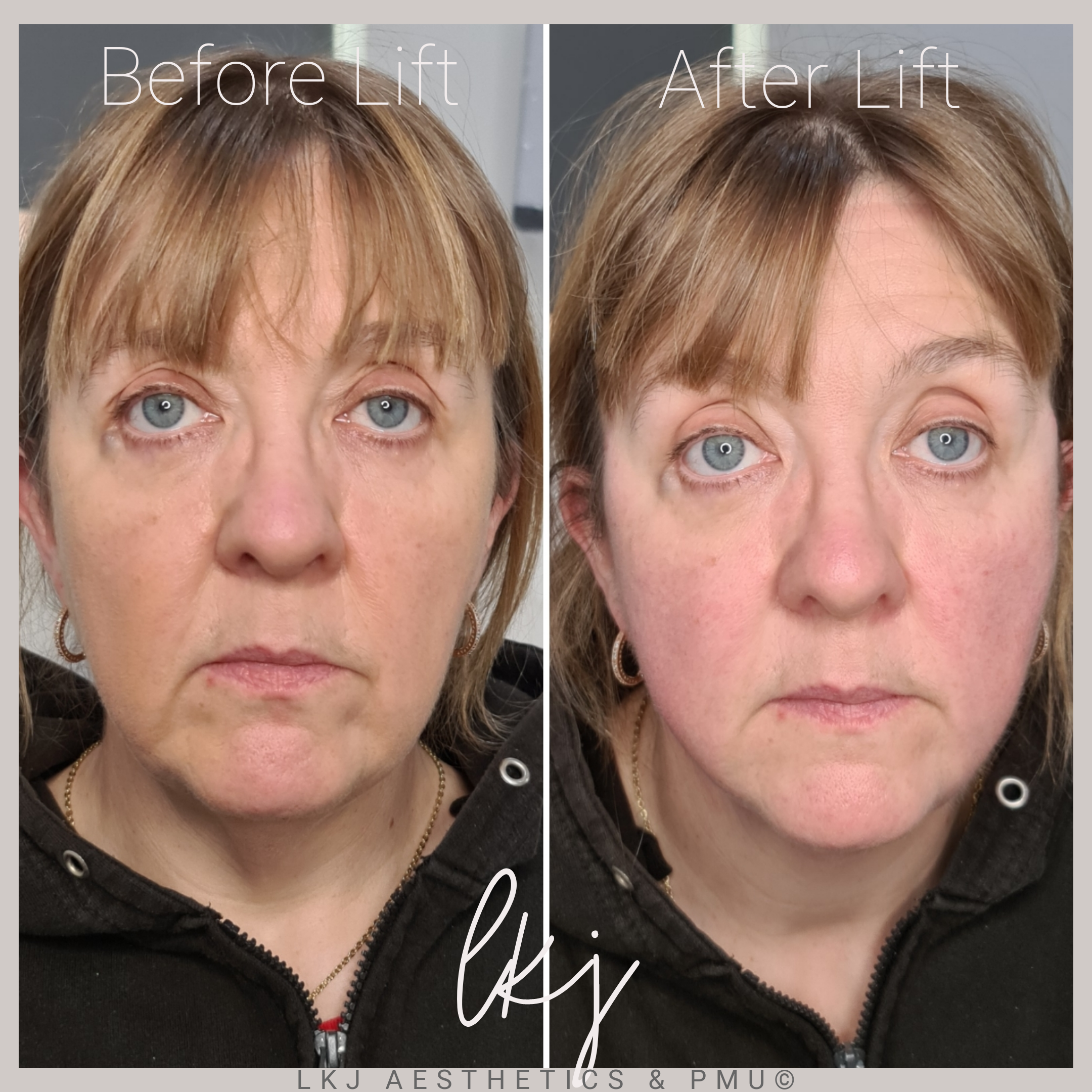 PDO Thread Lift - Mid, lower face and Ja