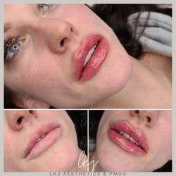 1ml Russian Lip Enhancement