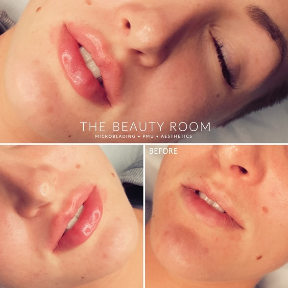 0.9ml Revolax Lip Enhancement