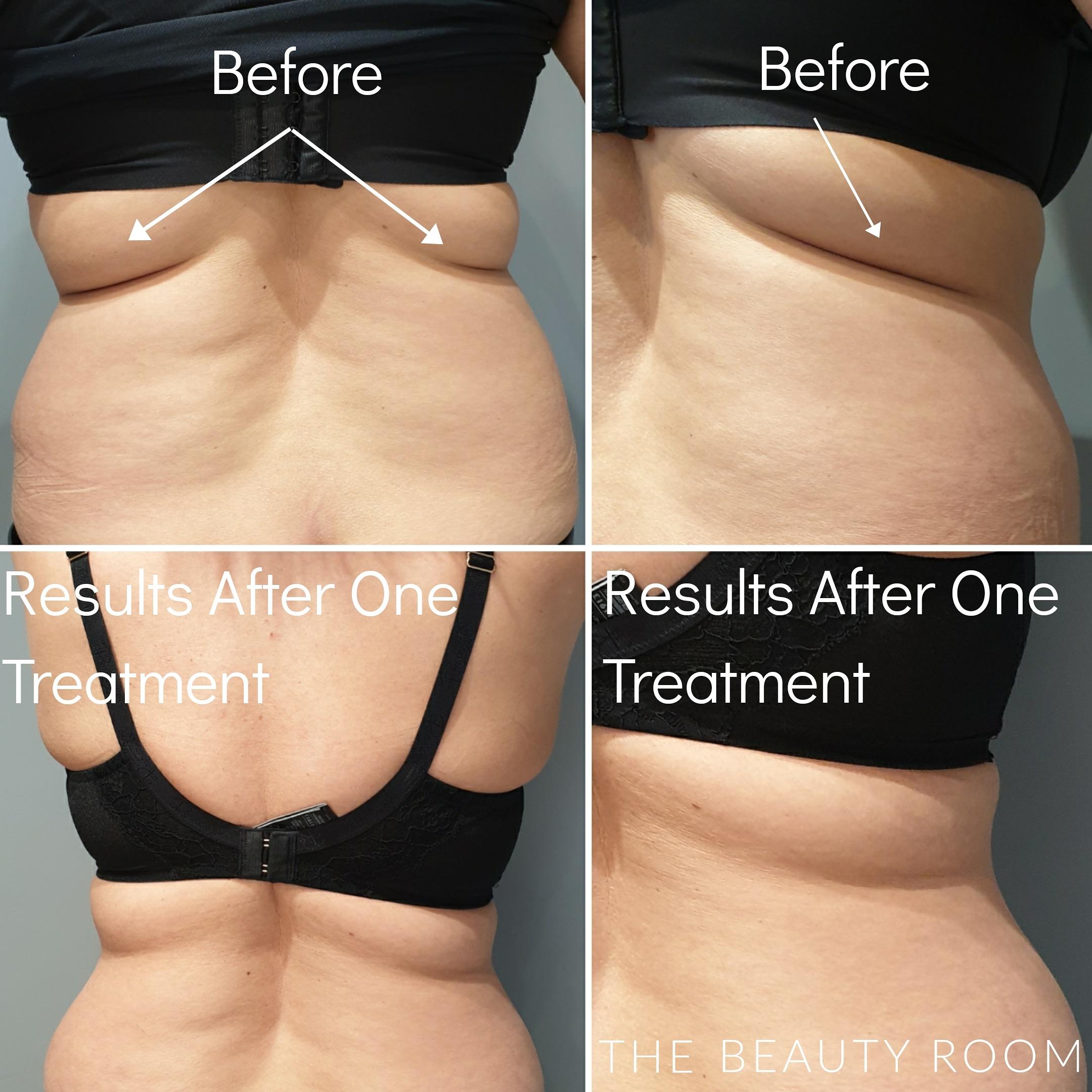 Aqualyx Fat Dissolve