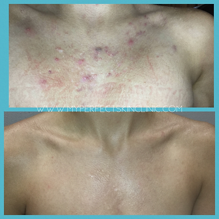KB B&A Chest.png