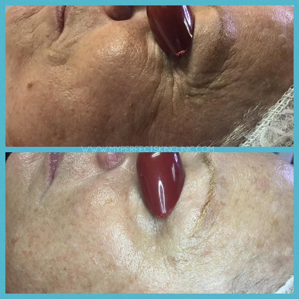 best anti aging facial in gilbert az