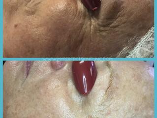Choosing The Right Anti Aging Facial