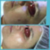 My_Perfect_Skin_Clinic_Gilbert_Anti-aging_Treatment
