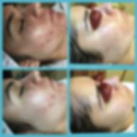 My_Perfect_Skin_Clinic_Gilbert_Acne_Scars