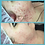 Thumbnail: Acne: Inflamed Box