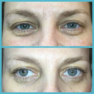 Fibroblast RF Plasma Before & After My Perfect Skin Clinic Gilbert