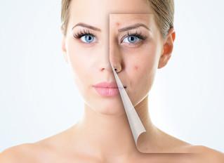 Acne Myths: Acne Part 2