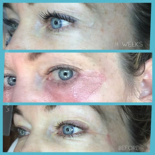 Fibroblast RF Plasma My Perfect Skin Clinic Gilbert