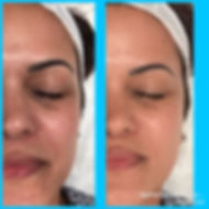 Opti Resurfacing No-peel facial My Perfect Skin Clinic Gilbert