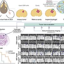 hydrogels brain cancer.png