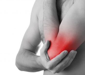 Cupping Clinic-Arthritis