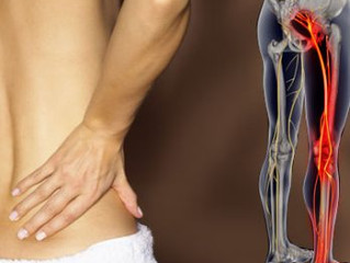 Cupping Clinic - Sciatic nerve problem.......is it getting on your nerves?