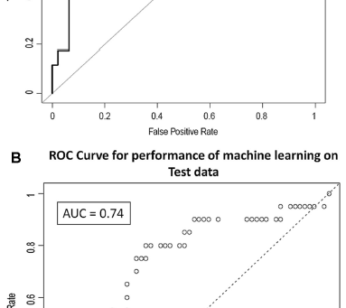 Using Machine Learning tools to predict complications after surgery