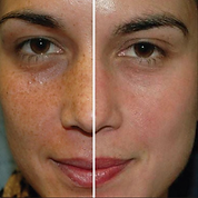 Rosacae-and-acne-treatments-in-Bromley.jpeg
