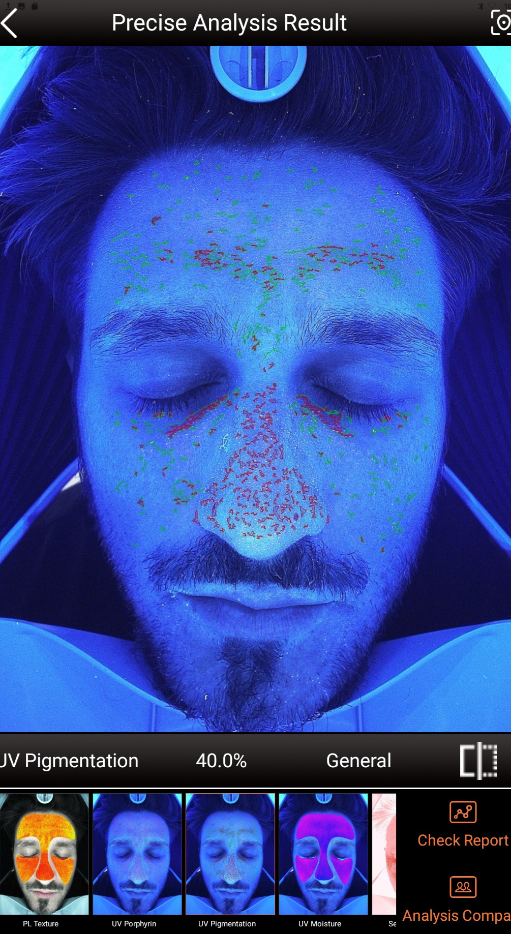 Peels & Photo-Facial