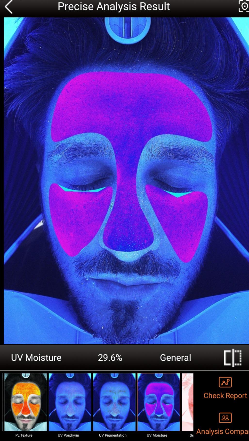 UV Pigmentation