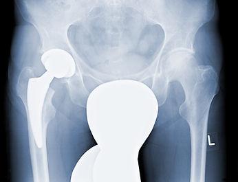 Röntgebild Kurzschaftprothese