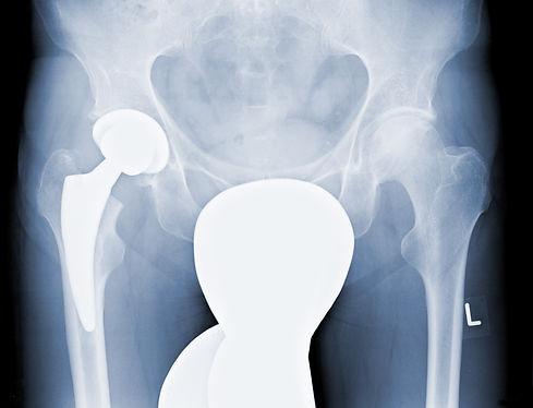 Röntgenbild Kurzschaftprothese