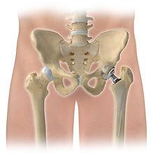 Hüftprothesen