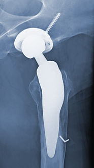Röntgenbild Individualprothese