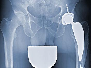 freiRöntgebild Individualprothese