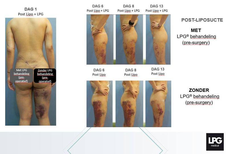 voor-na-liposuctie.jpg
