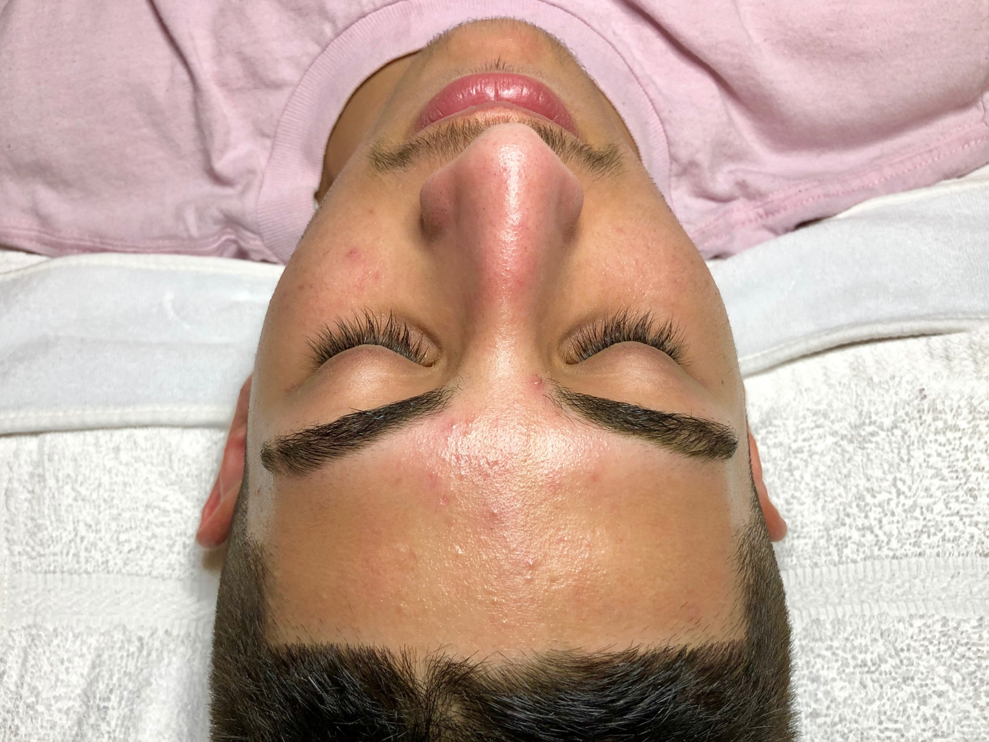Purifying Acne Facial