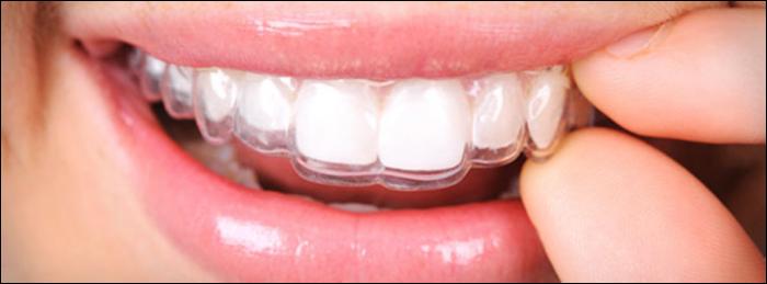 Ortodoncia invisible Clínicas RB dental