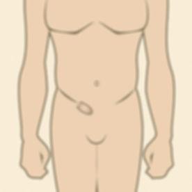 hernia inguinal.jpg