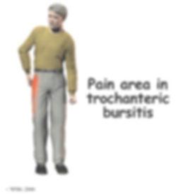 trochanteric_bursitis2.jpg