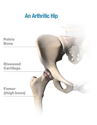 arthritic hip.jpg